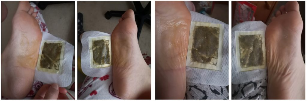 Images of the foot pads after being removed from my feet on the first and last nights. The pads look dark brownish-green and my feet look wet and slimy.